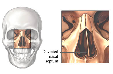 Deviated Septum
