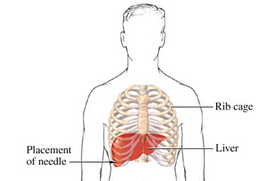 Placement of Liver Biopsy Needle