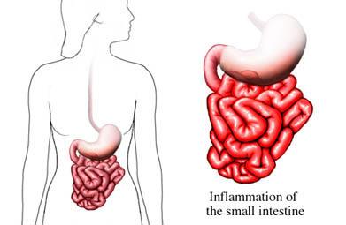 Trasorno de Crohn