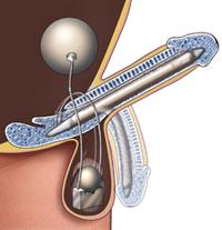 Implante de pene
