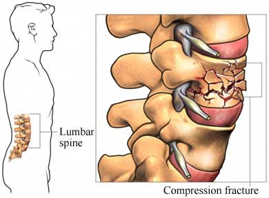 Compression fracture lumbar