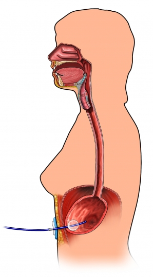exh38571_96472_1_Gastrostomy Tube.jpg