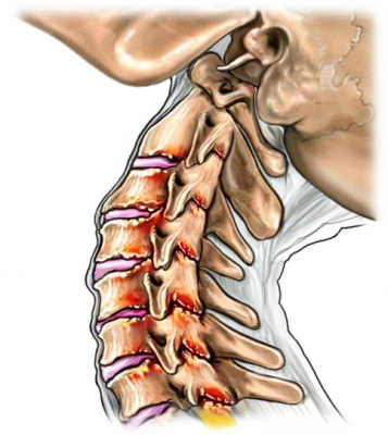 Whiplash cervical