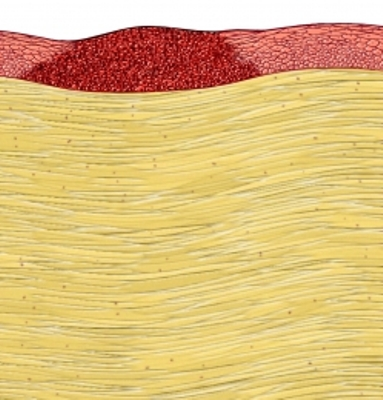 skin section mole