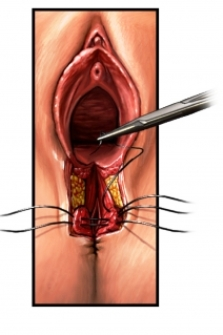 vaginal tear surgical repair