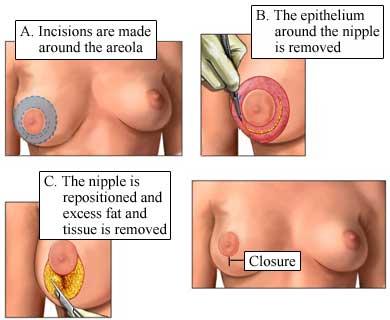 Nucleus factsheet image