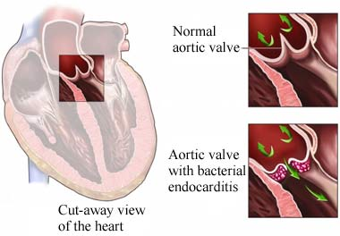 Bacterial endocarditis, aortic valve