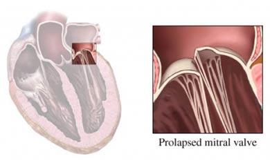 Prolapsed mitral valve