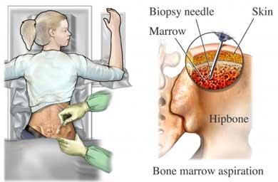 Biopsia de hueso