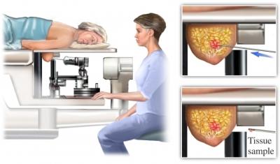 Biopsia esterotáctica
