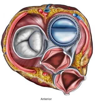 BP00039_97870_1_heart valve.jpg