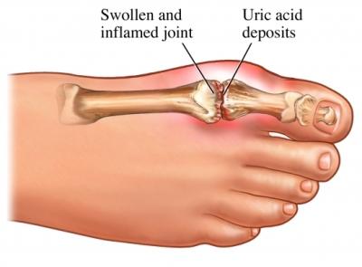 uric acid toe