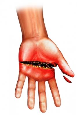 hand trauma