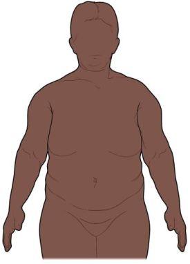 AN00029_obese body.jpg