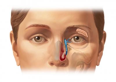 ao00127_40018_1_lacrimal duct.jpg
