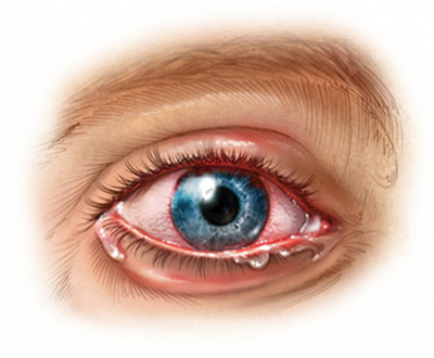 Eye Inflammation