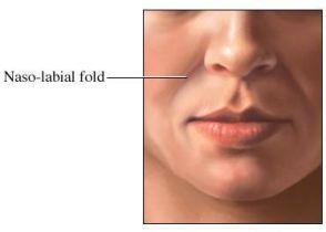 si1862_nasolabial fold.jpg