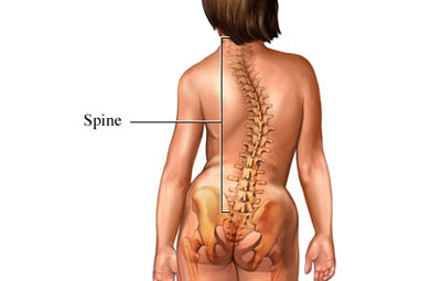 A Woman with Scoliosis