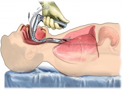 Intubación para asistir la respiración