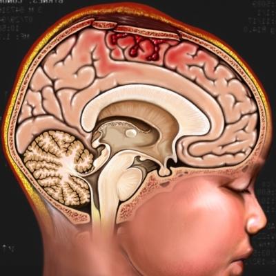 Lesión en la cabeza del menor