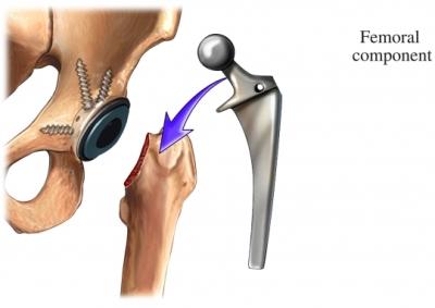 Elementos para el reemplazo de cadera