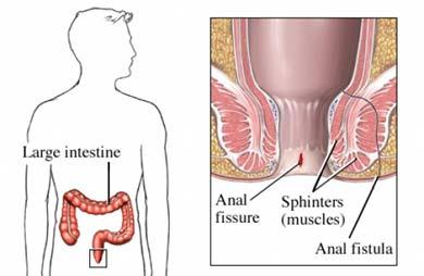 Fisura y fístula anal