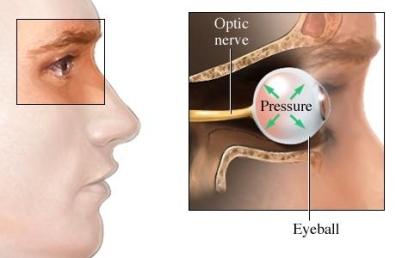 si1268_97870_1_glaucoma