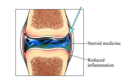 Steroid in Knee