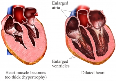 Heart wall disease
