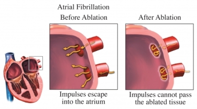 cardiac ablation heart