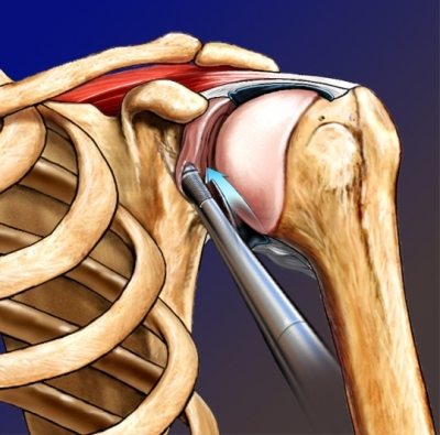 Shoulder joint repair