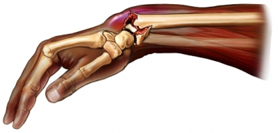 Colle's Fracture