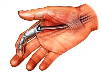 flexor tendon