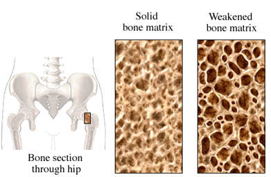 Weakened bone at hip