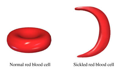 A graphic depicting a normal red blood cell on the left and a sickled red blood cell, which is shaped like a crescent, on the right.