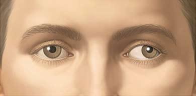 Ojo perezoso