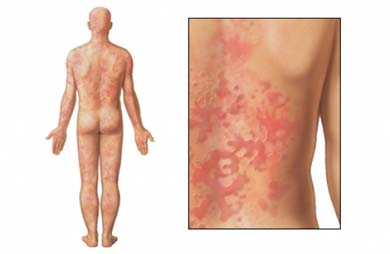 Splotchy body rash -adult