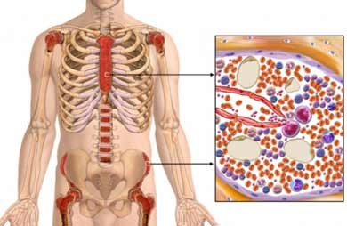 An outline of an adult body showing the skeletal system and highlighting areas of bone marrow, with a cross section and close-up view of bone marrow on the right.