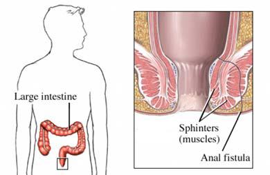 closeups-anal-fistula-with-tuberculosis-like