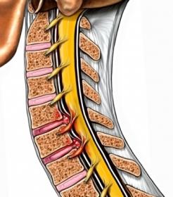 pequeña hernia de disco cervical