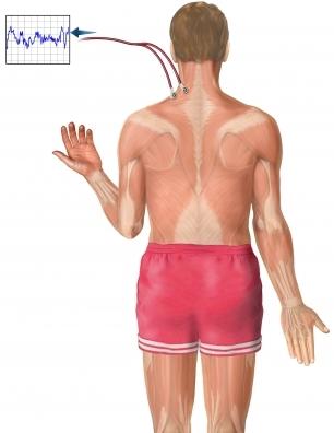 EMG del hombro 2