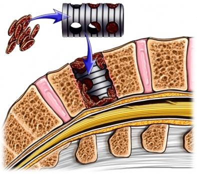 Fusión espinal lumbar