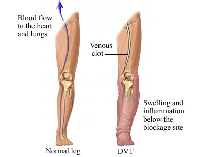 Deep Vein Thrombosis - Cancer Care of Western New York