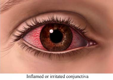 Conjuntiva inflamada