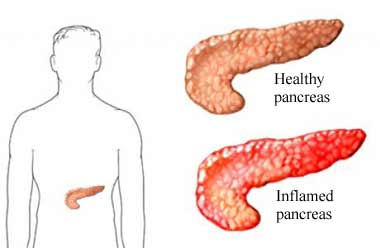 pancreatitis definition & overview, Human Body