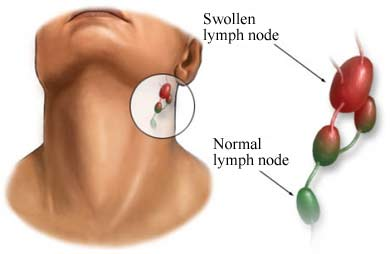 Swollen lymph node