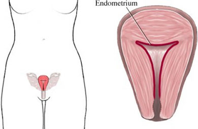 endometrial biopsy - biopsy - surgery - cancer treatment services, Human Body