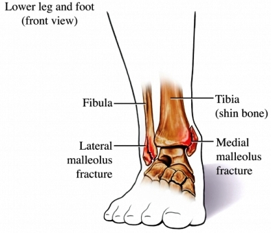 Ankle Fracture - Cancer Care of Western New York