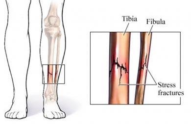 Tib / Fib fracture