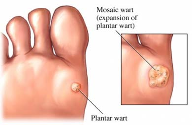Plantar Warts Cancer Care Of Western New York